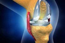 Indian scientists develop models to help improve hip, knee implants